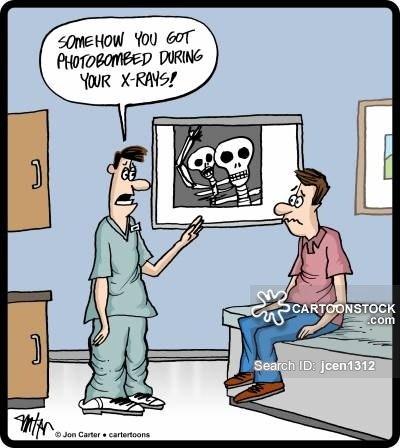 'Somehow you got photobombed during your x-rays!'